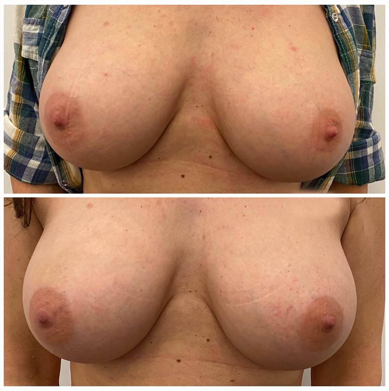 Areola size discrepancy corrected vancouver