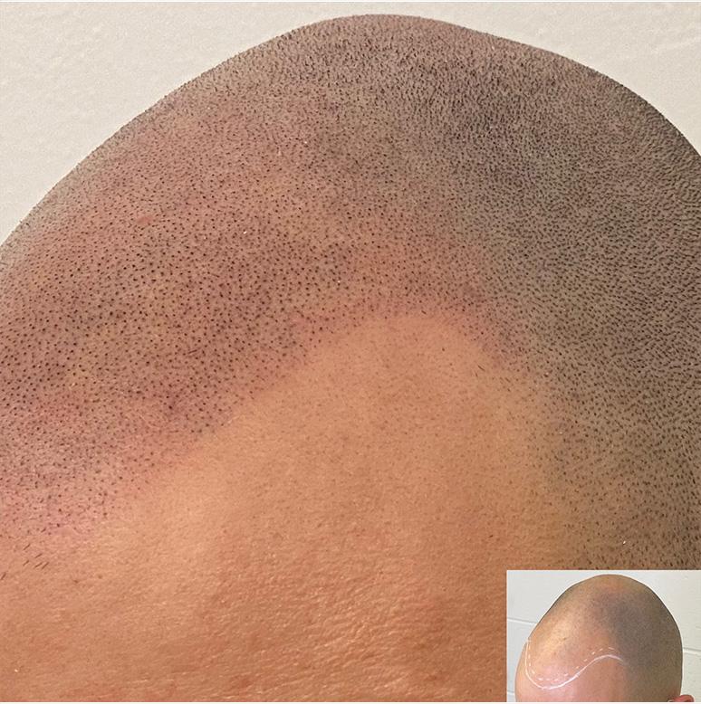Scalp micropigmentation vancouver