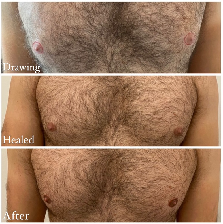 Male areola and nipple pigment definition vancouver
