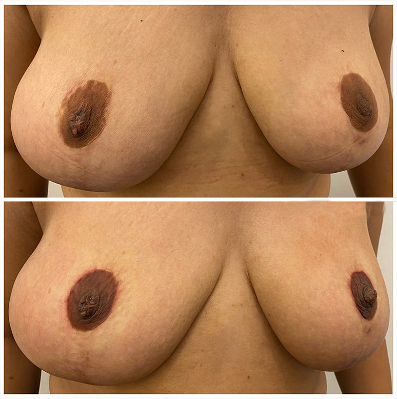 Areola definition created after scarring from a breast reduction vancouver