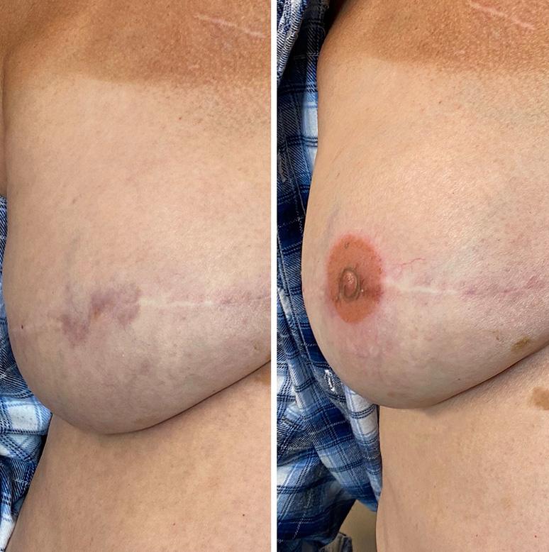 Post-mastectomy areola restorative tattoo vancouver