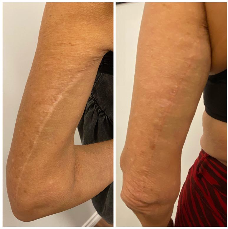 Brachioplasty (arm lift surgery) scar camouflage vancouver