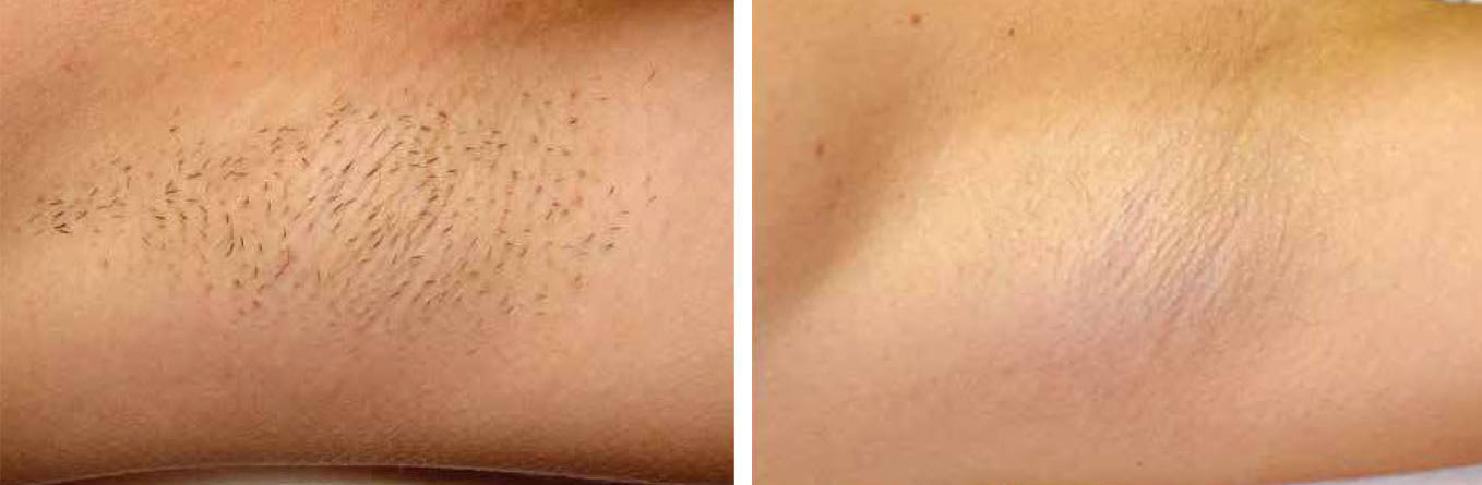 112.Laser-hair-removal